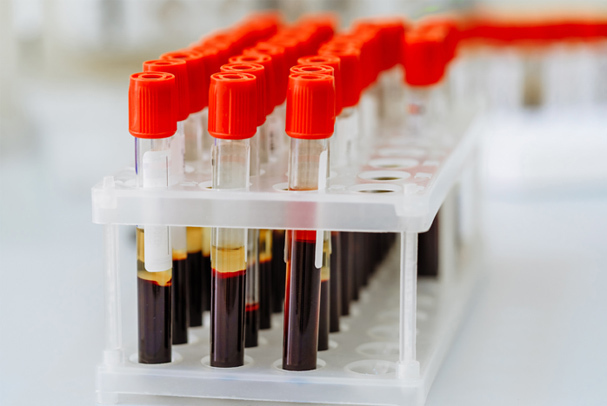 QHSE solution for Blood and Tissue Industry